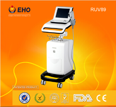 2015 NEW ARRIVAL! RUV89 Effective face lift hifu machine for skin tighten
