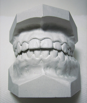 Mouth Guard Study Model