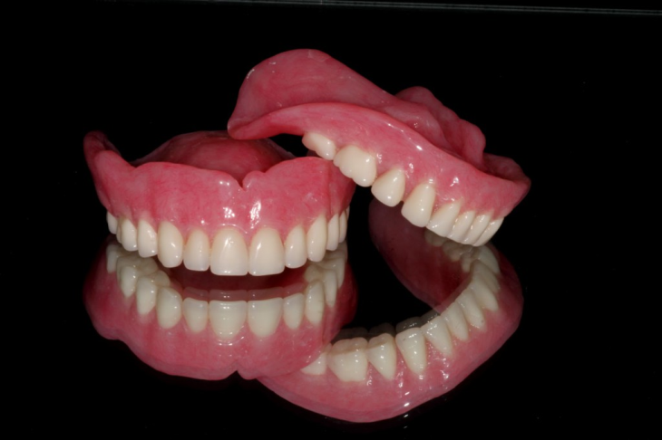 Removable Prosthetic Complete Dentures