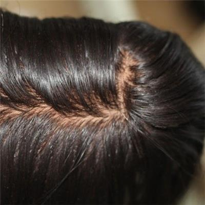 Silk Base Closure With Baby Hair