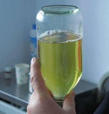 Children Urine Protein Symptoms