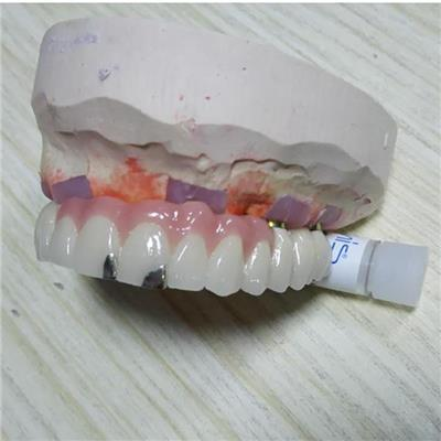 Implant PFM Bridge In Non-precious