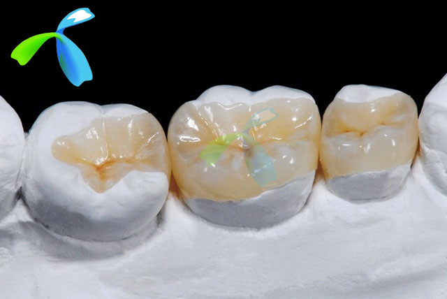 Ceramic IPS Empress crown / Veneer,  Emax Onlay/Inlay Post,  Maryland Bridge