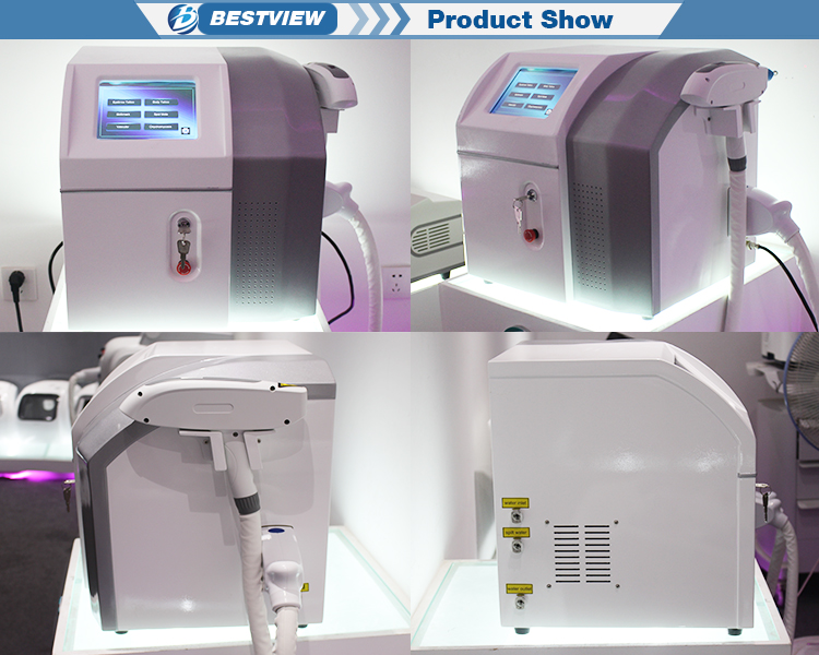 Best Q-switch ND YAG Laser Tattoo Removal Machine for sale