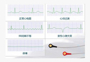 ecg device price, Industry leading ECG Recorder Softwareyou